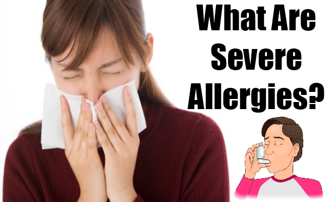 What Are Severe Allergies