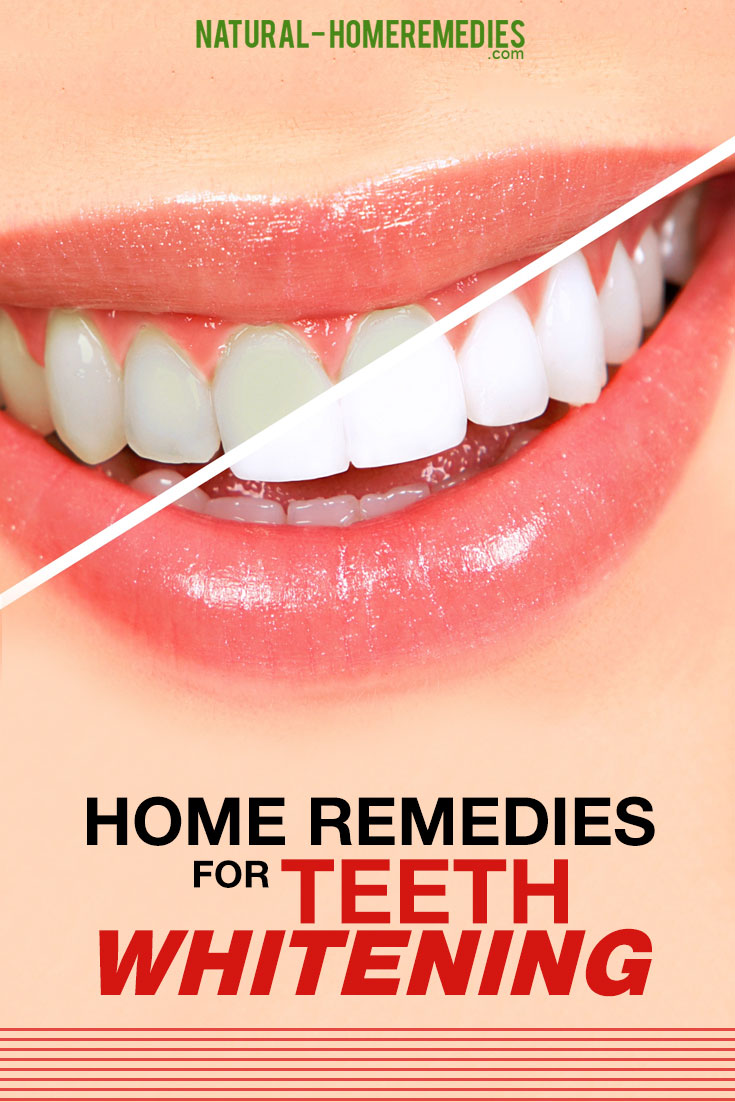 Home-Remedies-For-Teeth-Whitening