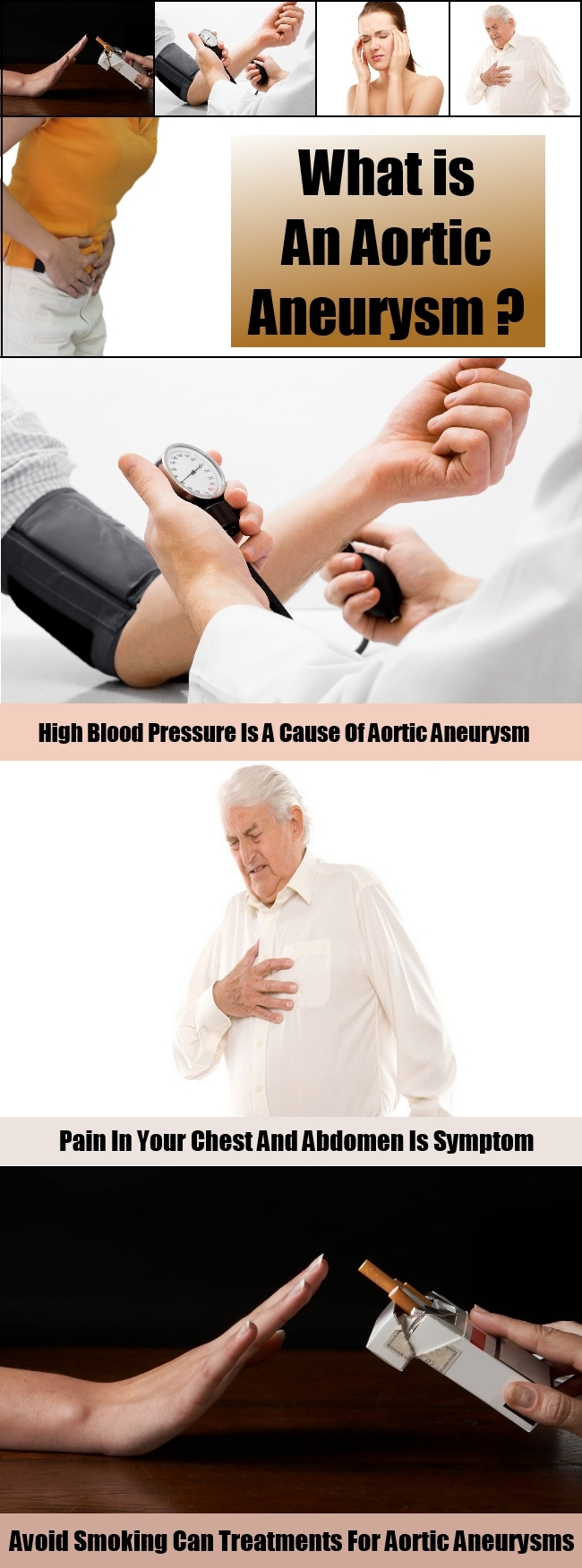 What is An Aortic Aneurysm
