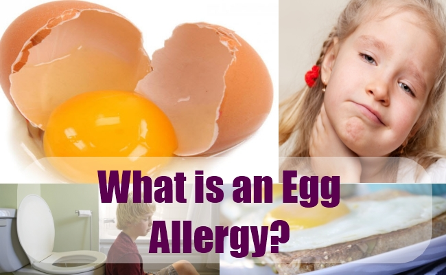 What is an Egg Allergy