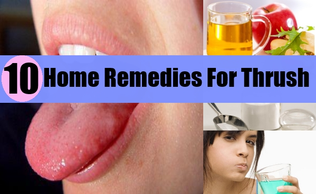 Home Remedies For Thrush