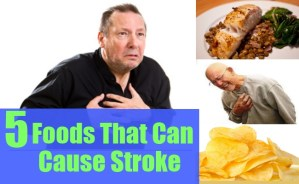 Foods That Can Cause Stroke