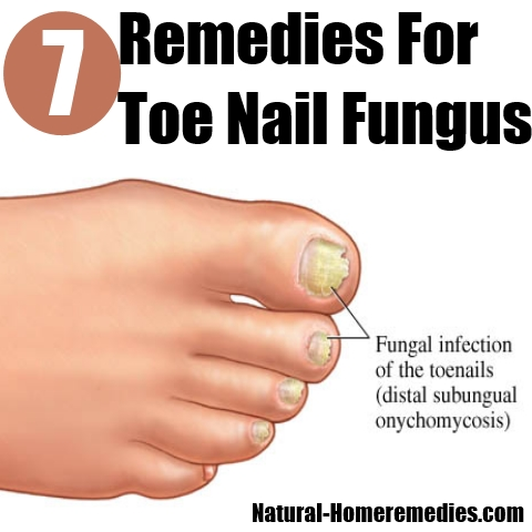 The Top Home Remedies For Toe Nail Fungus