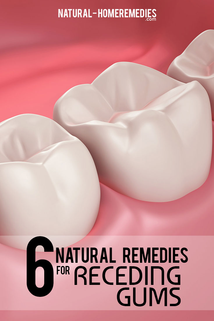 6-natural-remedies-for-receding-gums