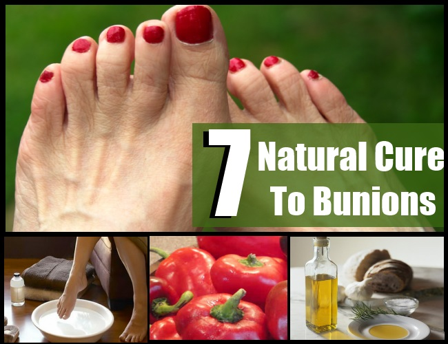 How To Cure Bunions Naturally