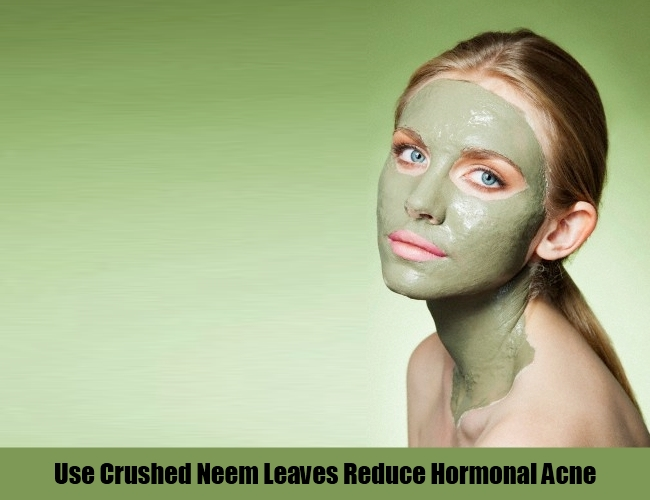 Use Crushed Neem Leaves For Hormonal Acne