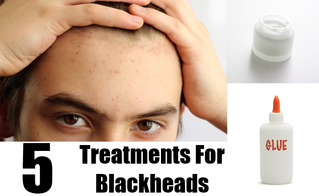5 Treatments For Blackheads