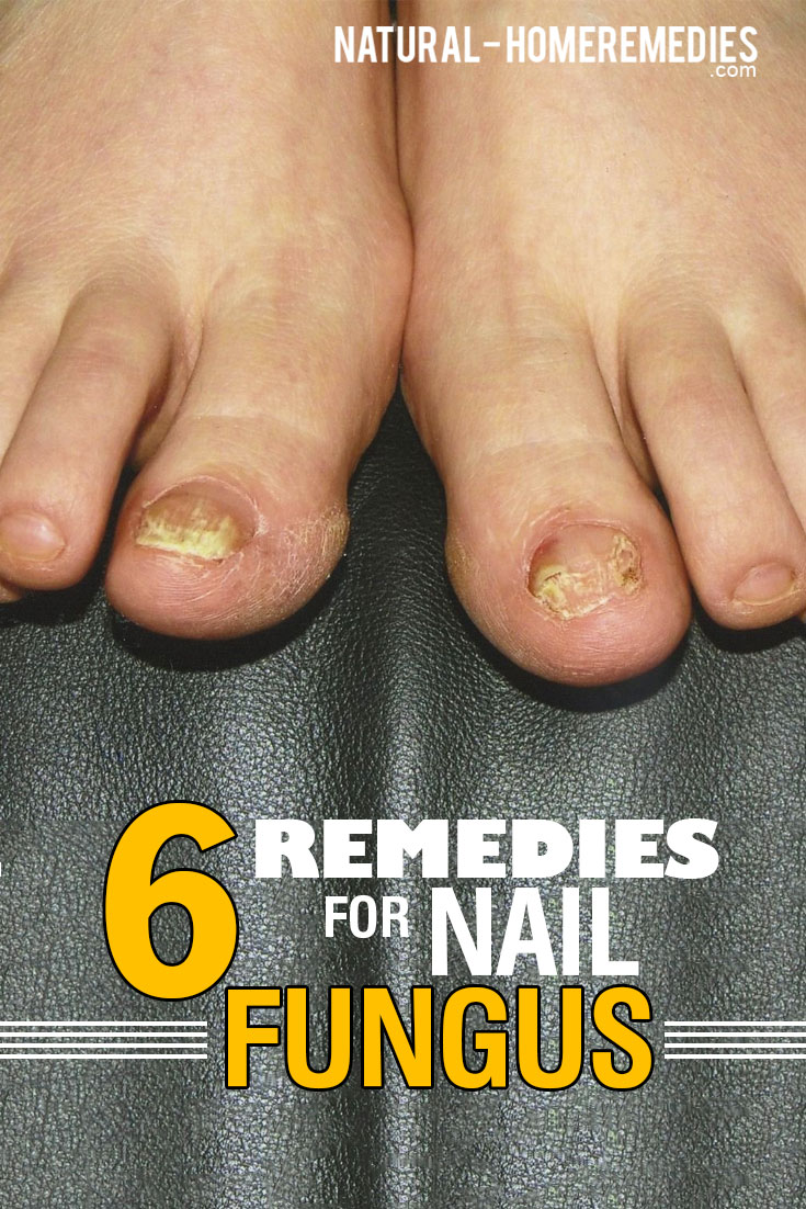 6-Remedies-For-Nail-Fungus