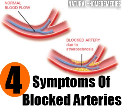 Blocked Arteries
