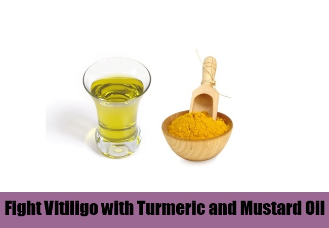 Fight Vitiligo with Turmeric and Mustard Oil Mixture