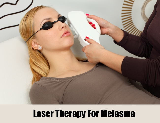 Laser Therapy For Melasma