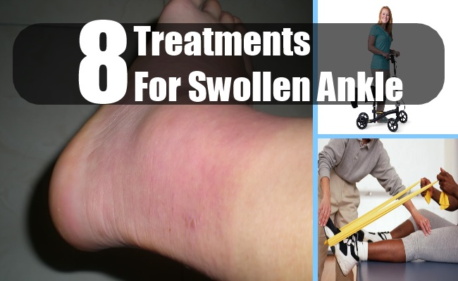 Treatments For Swollen Ankle