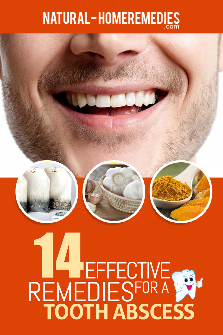 14-effective-remedies-for-a-tooth-abscess