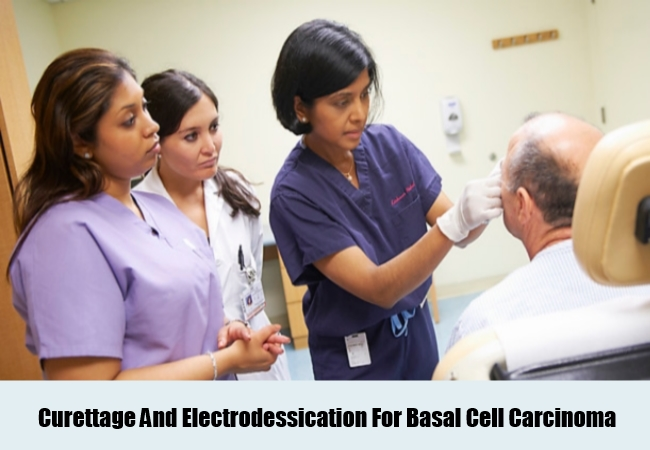 Curettage And Electrodessication