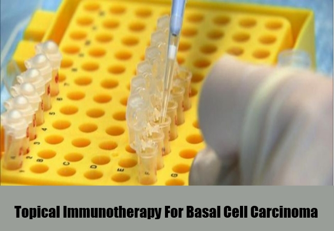 Topical Immunotherapy
