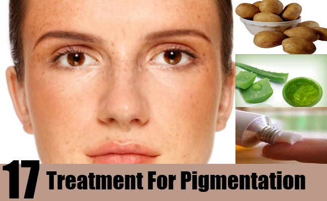Treatments For Pigmentation