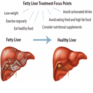 Stage 3 Liver Fatty Liver Life Expectancy