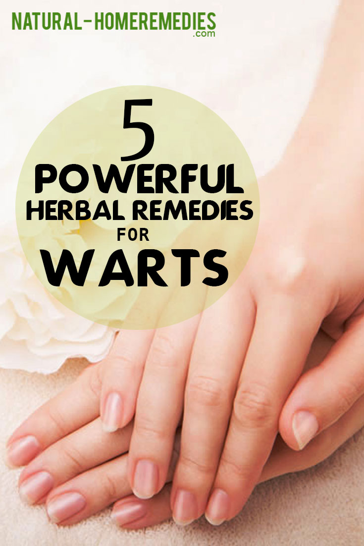 5-powerful-herbal-remedies-for-warts