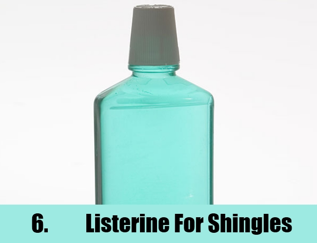 Top 6 Home Remedies For Shingles Natural Home Remedies
