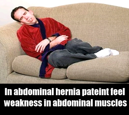 Signs Of Abdominal Hernia