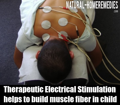 Therapeutic Electrical Stimulation