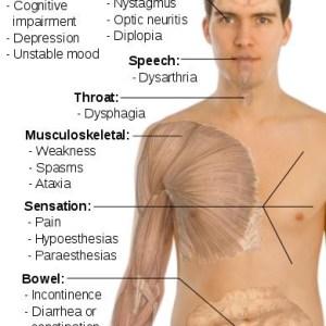 Varied Symptoms Of Multiple Sclerosis