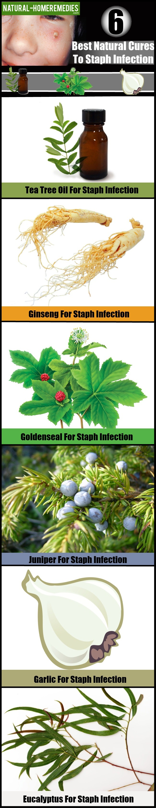 6 Best Natural Cures To Staph Infection