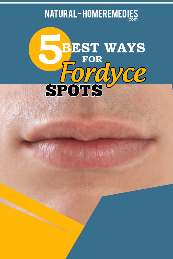 5 Best Ways For Fordyce Spots – Natural Home Remedies & Supplements