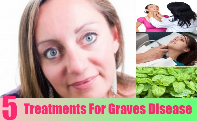 Treatments For Graves Disease