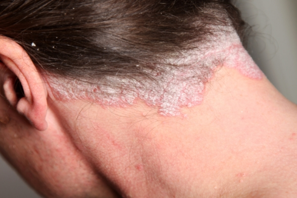 5 Best And Effective Ways For Scalp Psoriasis Treatments ...