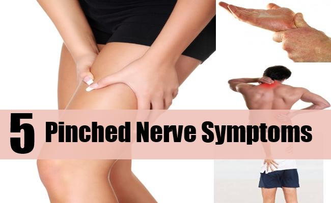 5 Pinched Nerve Symptoms
