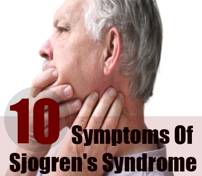Major Symptoms Of Sjogren's Syndrome