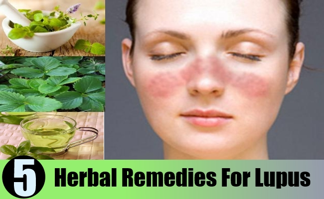 Herbal Remedies For Lupus