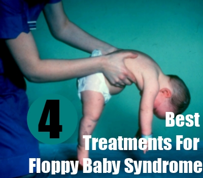 Best Treatments For Floppy Baby Syndrome