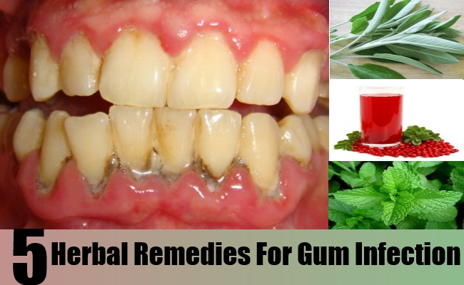 Herbal Remedies For Gum Infection