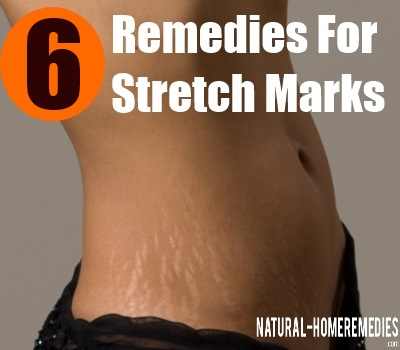 strech marks remedies