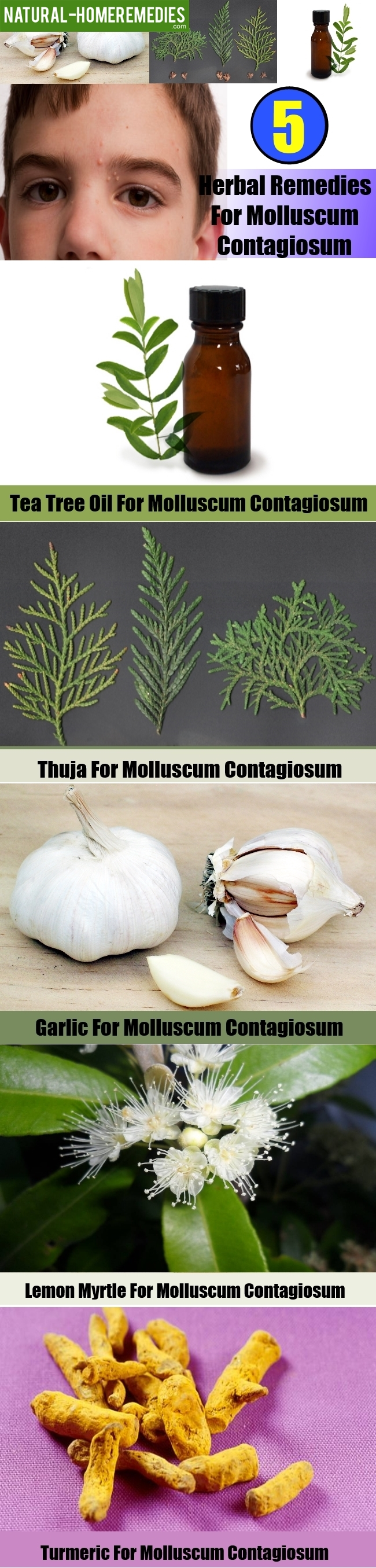 5 Best Herbal Remedies For Molluscum Contagiosum