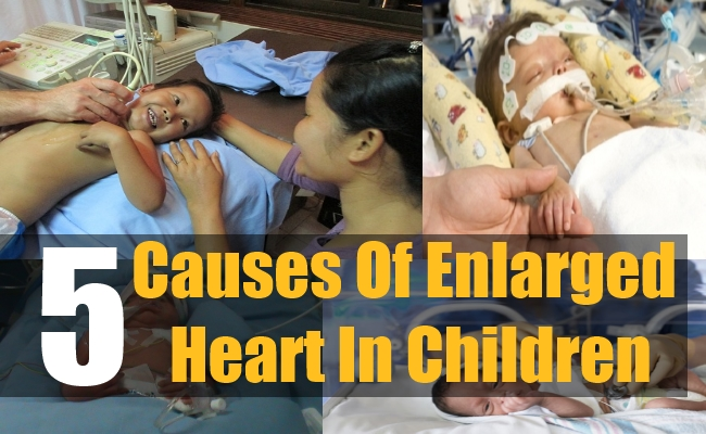 5 Causes Of Enlarged Heart In Children