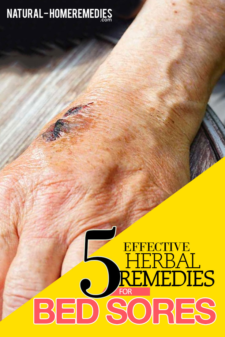 5-effective-herbal-remedies-for-bed-sores