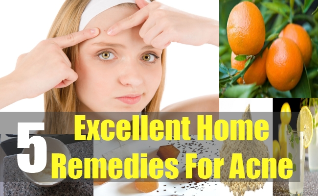 5 Excellent Home Remedies For Acne