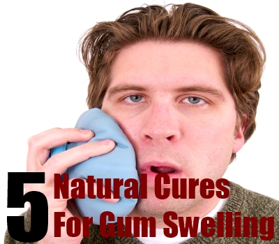 Best Natural Cures For Gum Swelling