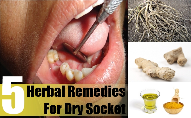 5 Herbal Remedies For Dry Socket Natural Home Remedies Supplements