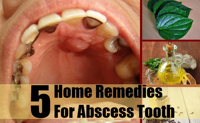 Home Remedies For Abscess Tooth
