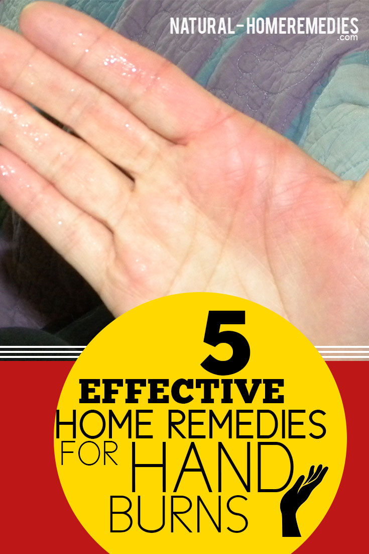5-Effective-Home-Remedies-For-Hand-Burns