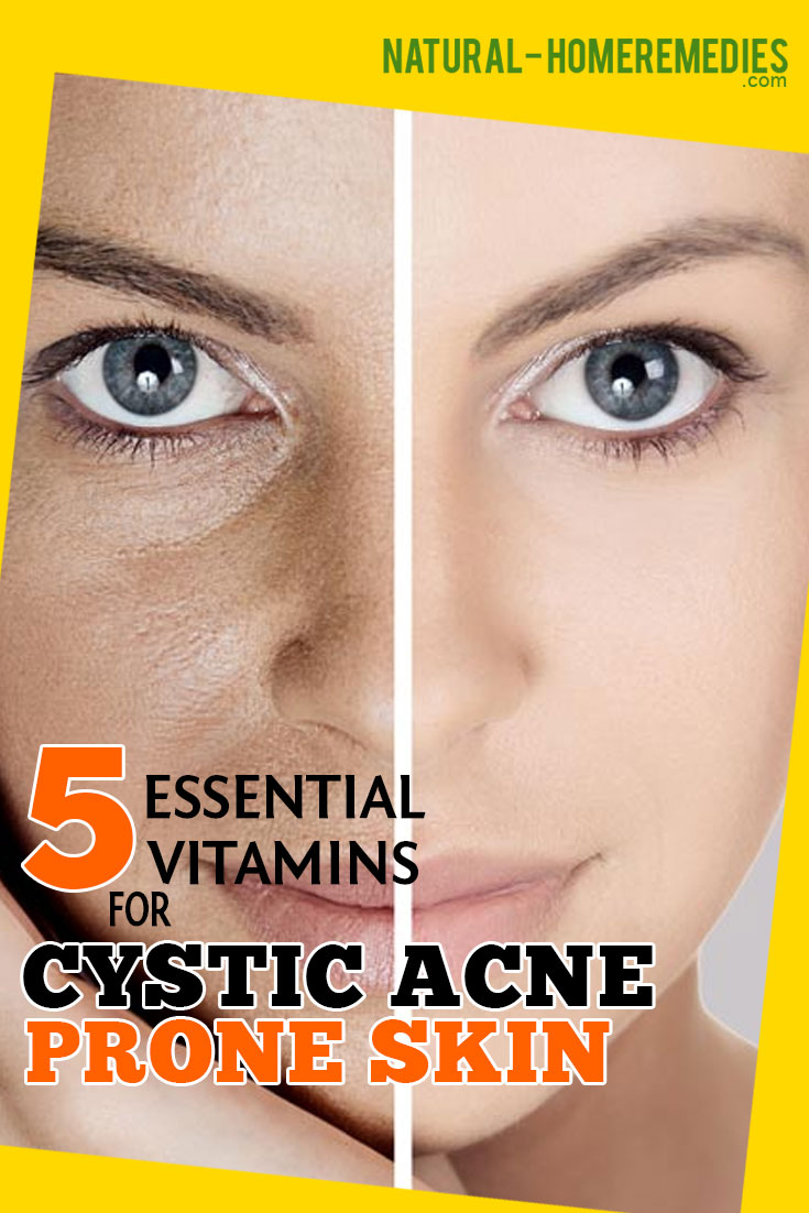 5-Essential-Vitamins-For-Cystic-Acne-Prone-Skin