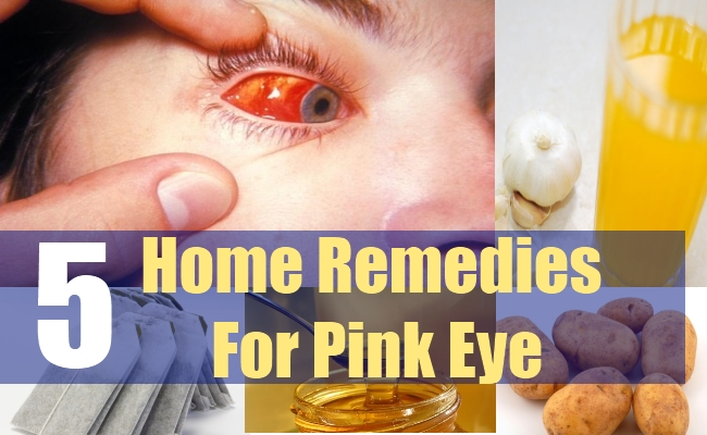 5 Home Remedies For Pink Eye