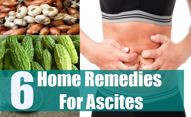 6 Home Remedies For Ascites