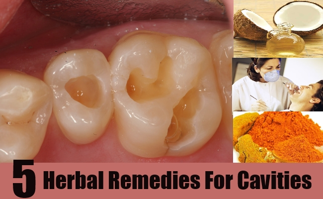 Herbal Remedies For Cavities