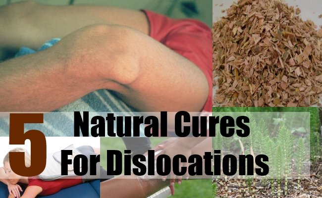 5 Natural Cures For Dislocations