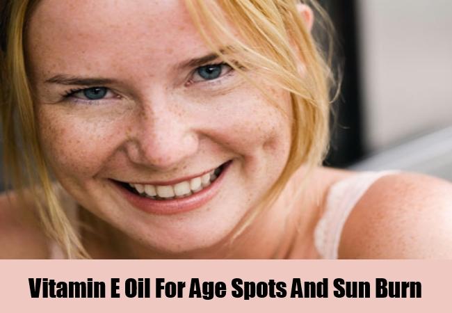 Age Spots And Sun Burn